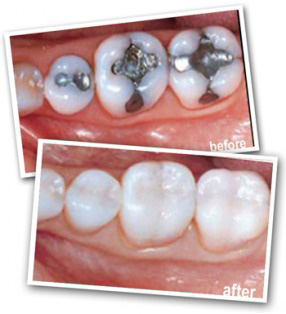 Dental White Fillings